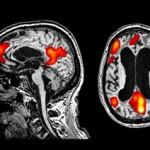 Coma – Un esame migliora la diagnosi rivelando le aree ancora attive del cervello