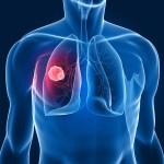 Nuovo test: la diagnosi precoce del tumore del polmone guadagna due anni
