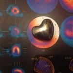 Pacemaker e defibrillatori, device salvavita che oggi fanno anche diagnosi e terapia